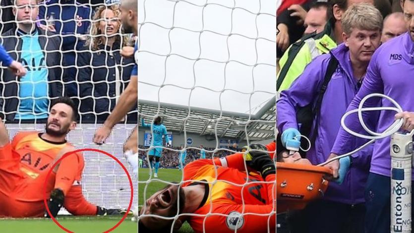 Premier League: la terrorífica lesión en el brazo que sufrió Hugo Lloris con Tottenham (VIDEO)