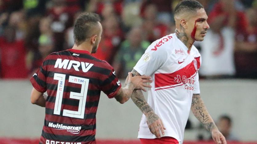 Flamengo vs Internacional: Paolo Guerrero mostró el terrible corte que sufrió en el párpado (FOTO)