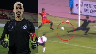 Deportivo Municipal: Diego Melián y su alucinante tapadón que le ocasionó una herida (VIDEO)