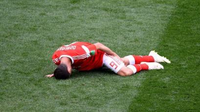 Rusia 2018: Alan Dzagoev es el lesionado más tempranero de los Mundiales